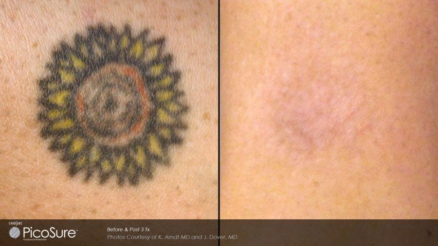 Picosure: rimuovere il tattoo è possibile_sun_MilanoPlatinum