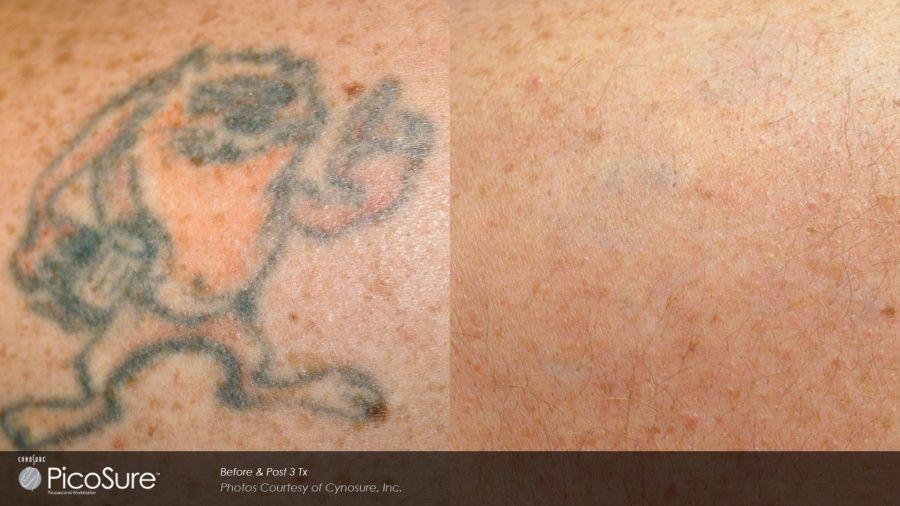 Picosure: rimuovere il tattoo è possibile_taz_MilanoPlatinum