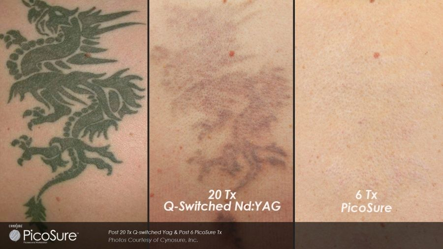 Picosure: rimuovere il tattoo è possibile_dragon_MilanoPlatinum