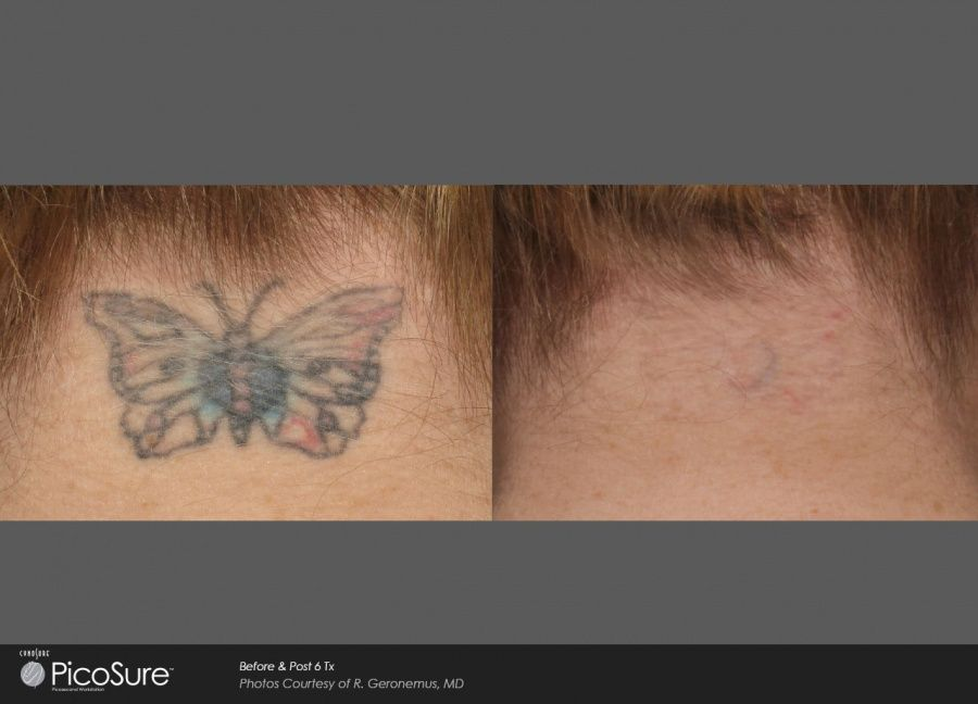 Picosure: rimuovere il tattoo è possibile_butterfly_MilanoPlatinum